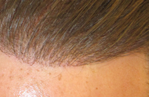Exoderm Biofibre hair implant hair loss
