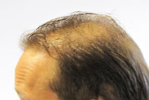 Hair loss Exoderm Biofibre hair implant