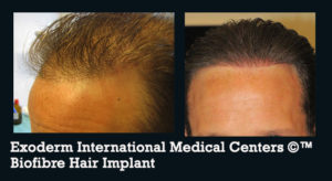 Biofibre Hair implant By Exoderm International Medical Centers